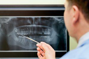 beaches-dentist-xray