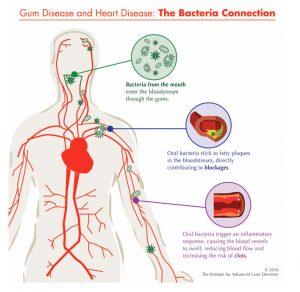 Gum-&-Heart-Disease