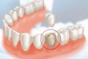 crowns-at-beach-dentists-newport
